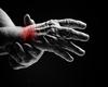 NGF: een interessant doelwit voor de behandeling van gewrichtspijn door osteoartritis