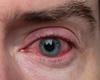 Beleid van oculaire manifestaties  bij atopische dermatitis en dupilumab-geassocieerde  conjunctivitis