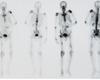 Traitement ciblé des métastases osseuses: cibles connues et nouvelles cibles prometteuses