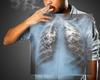 EMPOWER-Lung 1: le cémiplimab dans le cancer du poumon non à petites cellules à un stade avancé