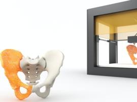 Materialise: gepersonaliseerde 3D-implantaten in Brazilië