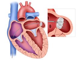 Fermer l'appendice auriculaire gauche au cours d'une chirurgie cardiaque pour prévenir les AVC
