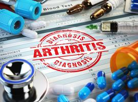 Update over perifere spondyloartritis, een verwaarloosde entiteit (deel 1)