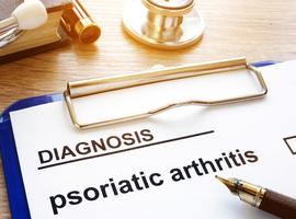 BEPAS: een real life cohort in psoriasisartritis