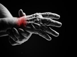 Le NGF: une cible intéressante dans le traitement des douleurs articulaires liées à l'ostéoarthrite