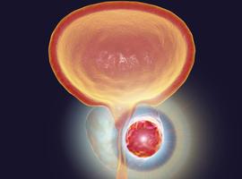 Testostérone et cancer de la prostate localisé à haut risque