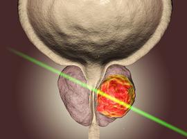 Focale laserablatie bij prostaatkanker