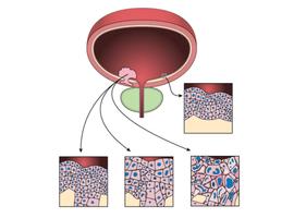 Quelle place pour la chimiothérapie péri-opératoire dans le cancer urothélial du tractus supérieur?