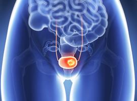 Intérêt de la sous-stadification T dans le cancer de la vessie n'infiltrant pas le muscle