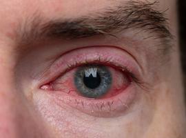 Prise en charge  des manifestations oculaires dans la dermatite atopique  et la conjonctivite associée au dupilumab