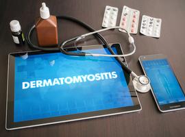 ProDERM: les IVIg en cas de dermatomyosite