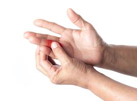 Chronische pijn aan de vinger: denk aan osteoïd osteoom