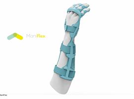 Antwerpse student ontwerpt hulpmiddel voor kinderen met spasticiteit