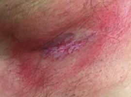 Axillaire extramammaire ziekte van Paget met heelkundige excisie