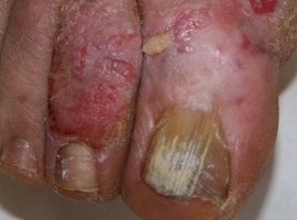 Cas clinique: tuberculose cutanée