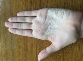Inzending mooiste beeld: Palmistry