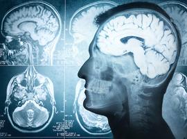 Antioxidantia ook doeltreffend tegen veroudering van de hersenen