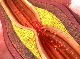 Mais de quoi meurent donc les coronariens?