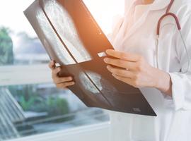 Fulvestrant versus anastrazol en hormoonreceptorpositief gevorderd borstcarcinoom