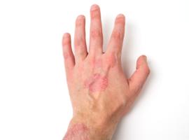 De l'arthrite psoriasique à l'athérosclérose coronarienne