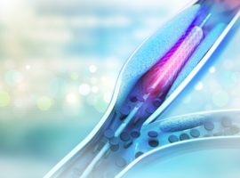 Le stent biorésorbable est-il vraiment l'avenir?