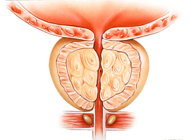 Chirurgische behandeling van benigne prostaathypertrofie