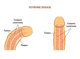 Geestelijke gezondheid van patiënten met de ziekte van La Peyronie