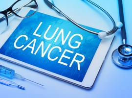 Cancer du poumon non à petites cellules ALK+: le lorlatinib vise la 1ère ligne
