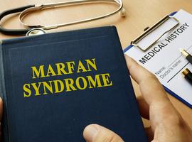 Irbesartan versus placebo voor het syndroom vanMarfan