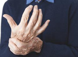 Mieux prédire la progression chez les sujets à risque de polyarthrite rhumatoïde