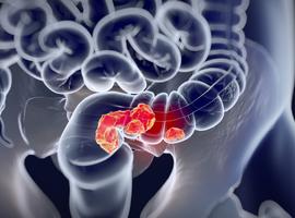 Wilmstumor of hodgkinlymfoom: hoog risico op digestieve kanker