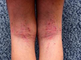 Dermatite atopique: les cibles se multiplient