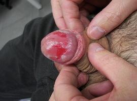 Erosies glans penis.