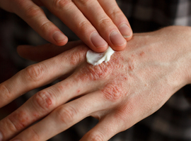 Psoriasis: aller au delà de l'atteinte cutanée