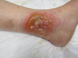 Allergische contactdermatitis door cetomacrogolcrèmes
