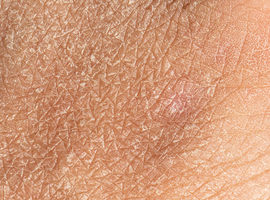 Belgian Dermatology Days 2021: captivant, instructif  et innovant