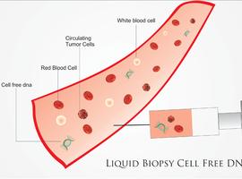 La biopsie liquide, nouvel outil de lutte contre le cancer, entre dans la routine clinique