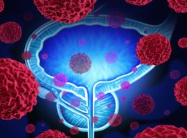 Nieuwigheden in de behandeling van hormoongevoelige gemetastaseerde prostaatkanker