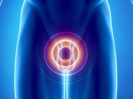Cancer du pénis localement avancé: où en est-on?