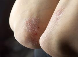 L'utilisation des immunomodulateurs pour le psoriasis: tour d'horizon