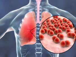 Infections récidivantes dans l'arthrite rhumatoïde