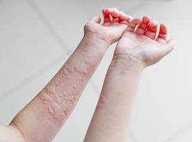 L'urticaire,  plus et autre chose  qu'une simple «allergie»!