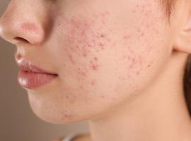 Acne: het juiste gebruik van antibiotica