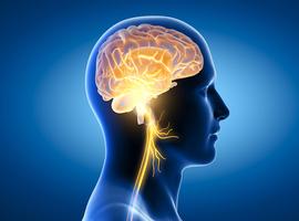 Stimulation du nerf vague + rééducation fonctionnelle en cas de handicap moteur du membre supérieur post-AVC