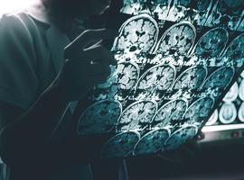 Un acide aminé, la L-sérine, administré en complément alimentaire pourrait réduire les troubles de la mémoire