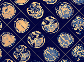 Rol van ijzer in de cognitie bij parkinsonpatiënten