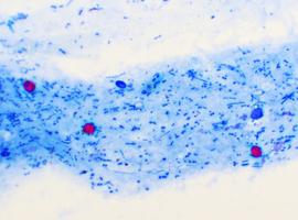 Processus de défense du microbiote en cas d'envahissement par un germe pathogène