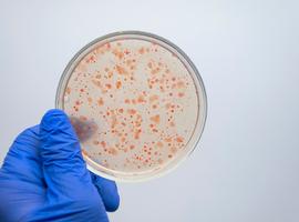 Une dysbiose du microbiote intestinal aurait une influence néfaste sur le développement de l'arthrite rhumatoïde chez les sujets à haut risque