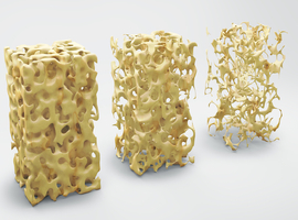 Preventie en behandeling van glucocorticoïden-geïnduceerde osteoporose bij volwassenen (deel 2)