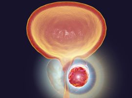 Le PSMA-PET dans l'identification d'une atteinte des ganglions pelviens dans le cancer de la prostate